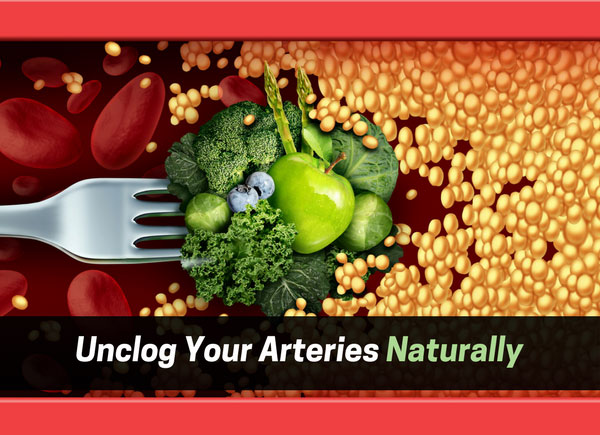 Ways To Unclog & Clean Your Arteries