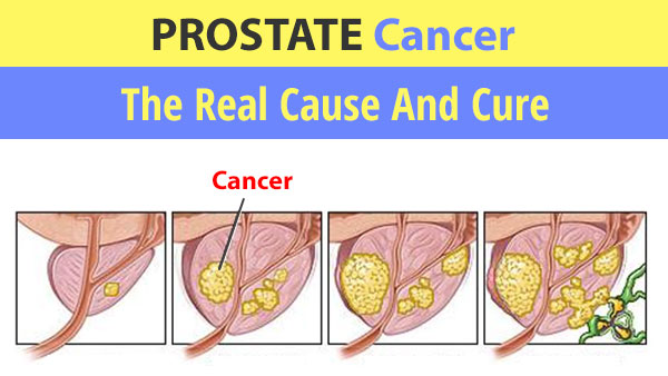 Prostate cancer real cause and cure